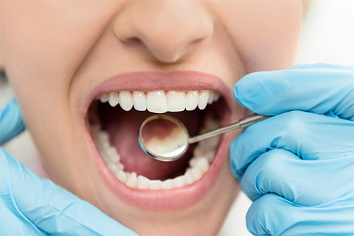 Five Reasons Why You Should Love Your Dentist