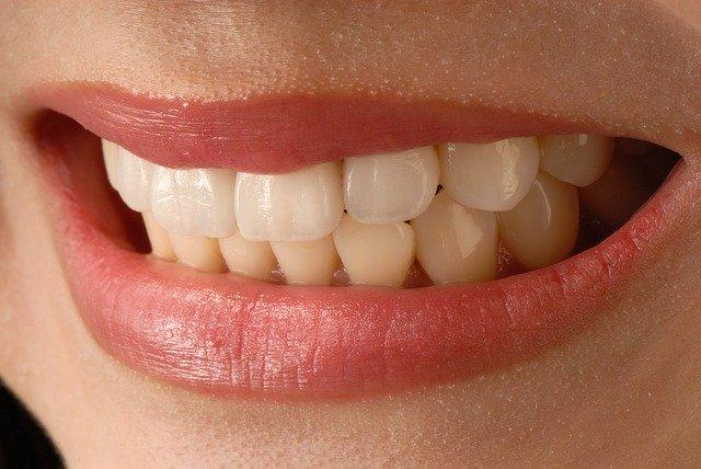 Dental veneers look incredible