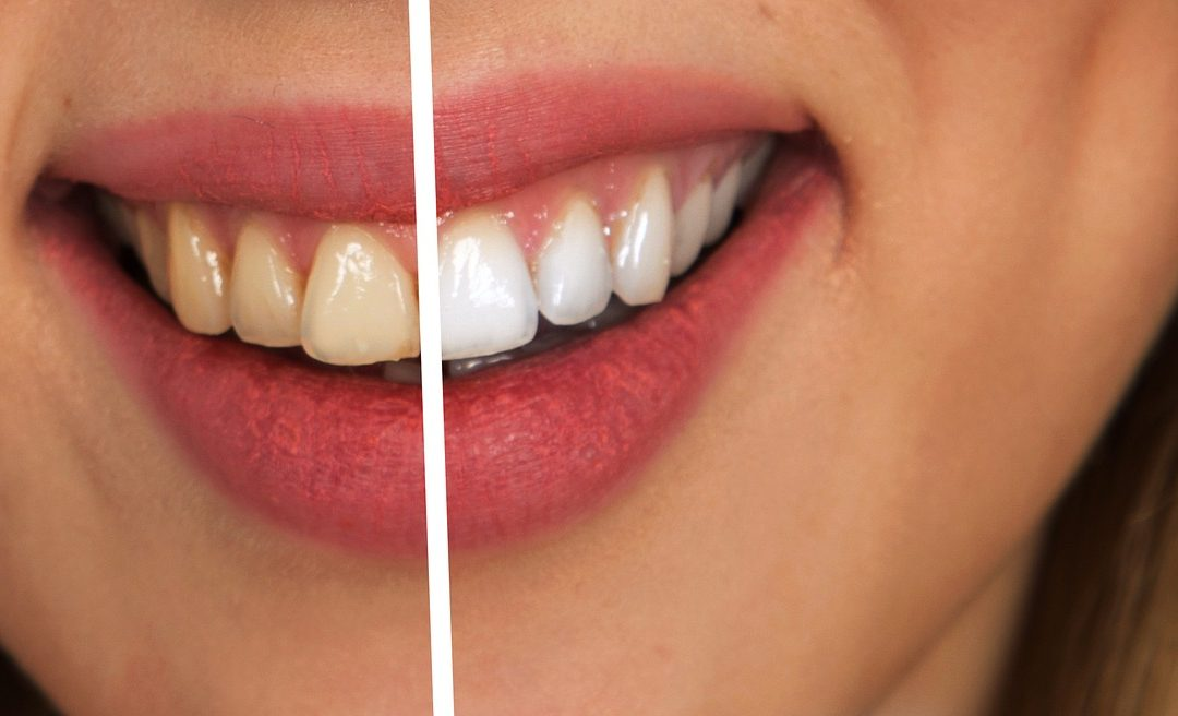 The Dangers Of Illegal Tooth Whitening Revealed