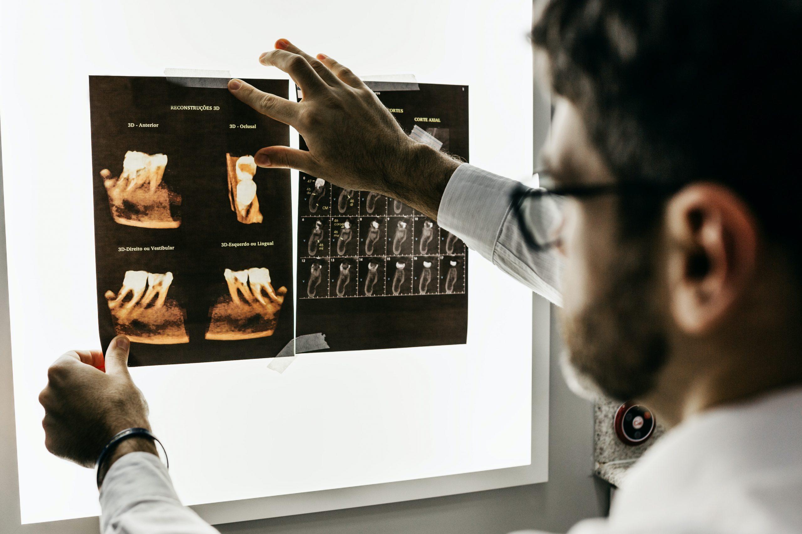 Dentist looking at dental x ray